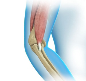 Elbow Tendon and Ligament Repair