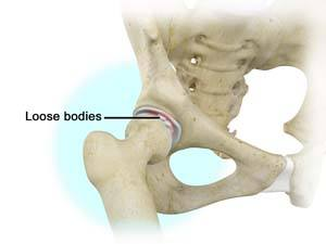 Loose Bodies in the Knee