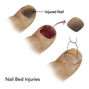 Nail Bed Injuries